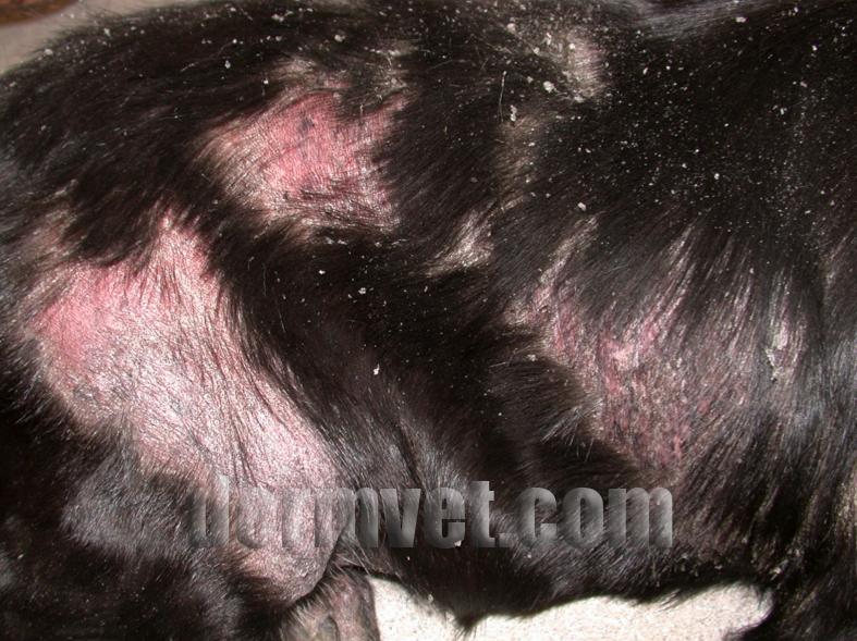 cutaneous epitheliotropic lymphoma in lacey  wa