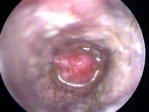 An inflammatory polyp obstructs the ear canal